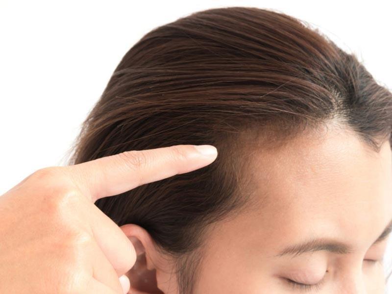 عوامل ریزش مو در زنان