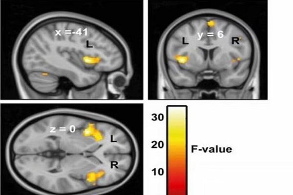 چرا برخی افراد با شنیدن صداهای خاص عصبی می شوند